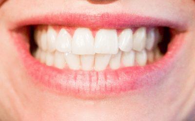 Entenda o que seus clientes mais querem no consultório odontológico